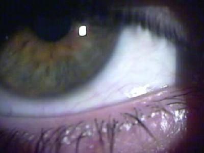 El hombre invisible, 2004